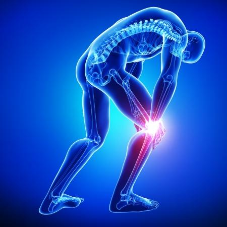 head pain: anatomy of knee pain in blue Stock Photo