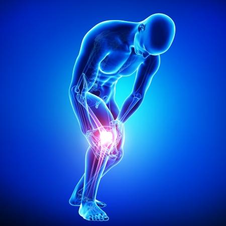 Anatomie des Knies Schmerzen in blau Standard-Bild - 15482315