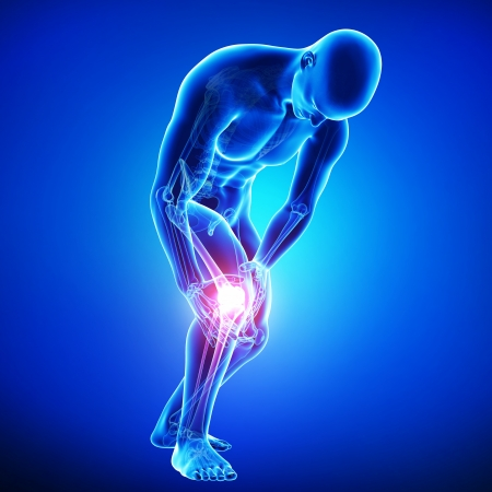 legs: anatomy of knee pain in blue Stock Photo