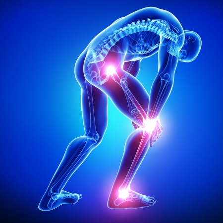 dolor muscular: Anatom�a del dolor de rodilla en azul Foto de archivo