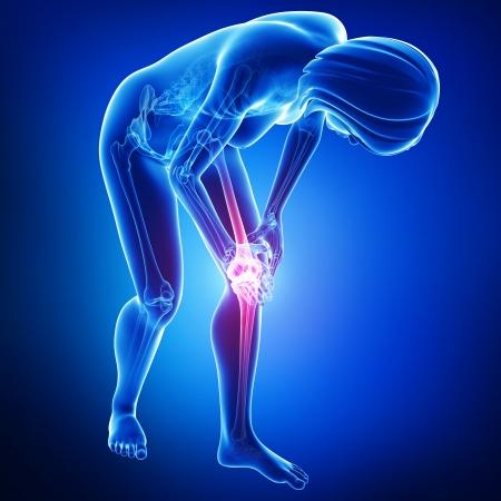 Schmerzen im Knie blau Standard-Bild - 15482317