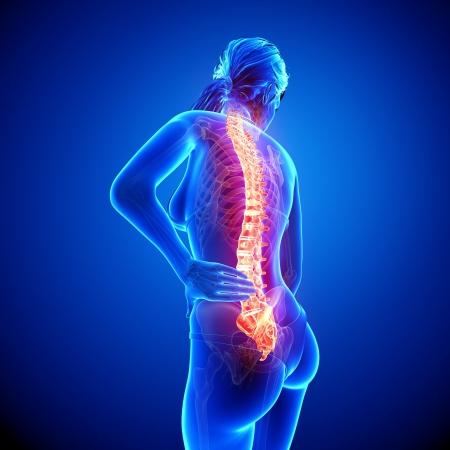 青の女性の背中の痛みの解剖学のイラスト
