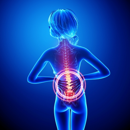 Illustration of female spine pain anatomy in blue