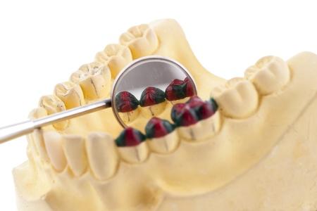 Denture cast model and dental tools Stock Photo - 15445860