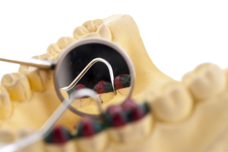 scaler: Denture cast model and dental tools Stock Photo