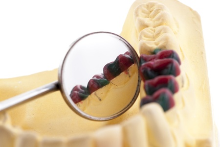 plaster mould: Denture cast model and dental tools Stock Photo