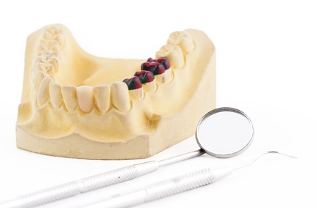 Denture cast model and dental tools Stock Photo - 15445852