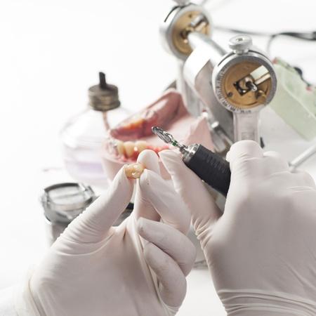 laboratorio dental: T�cnico dental trabajando con articulador en el laboratorio dental Foto de archivo