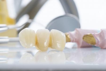 implantology: Macro of prosthetic teeth with dental tools Stock Photo