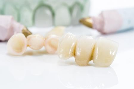 白い背景の上の人工歯のマクロ。 写真素材