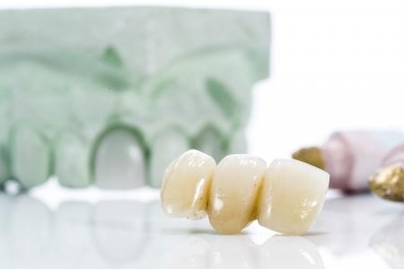 implantology: Macro of prosthetic teeth on a white background.
