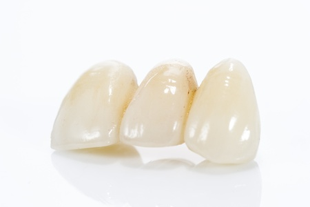 Macro of prosthetic teeth on a white background. photo