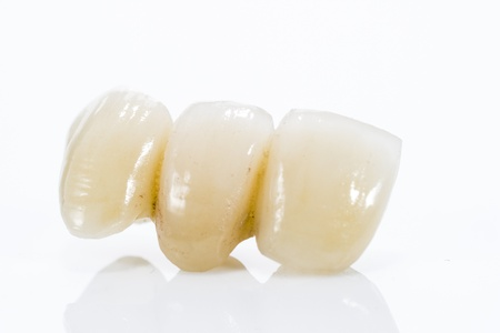 dentition: Macro of prosthetic teeth on a white background.