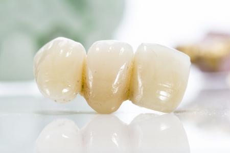 laboratorio dental: Macro de los dientes prot�sicos sobre un fondo blanco.