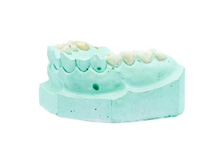 plaster mould: Denture cast model isolated on white background