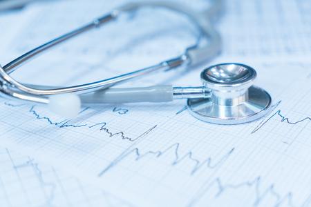 electrocardiograma: Stethoscope on electrocardiogram.
