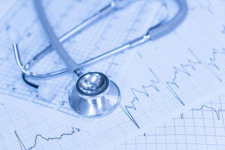 electrocardiograma: Estetoscopio en el electrocardiograma. Foto de archivo
