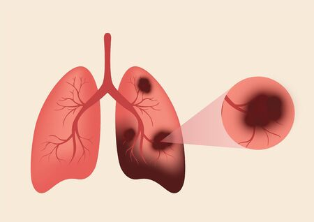 Lungs illustration in a very professional and creative design, the design shows the smokers lung in dark color. page, website, app, banner. vector, illustration. Ilustração
