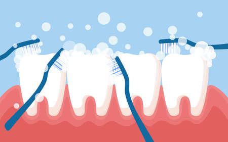 Tooth cleaning. Teeth characters before and after whitening. Cartoon tooth before and after cleaning or whitening or dental procedures. Vector, illustration, flat design, cartoon  イラスト・ベクター素材