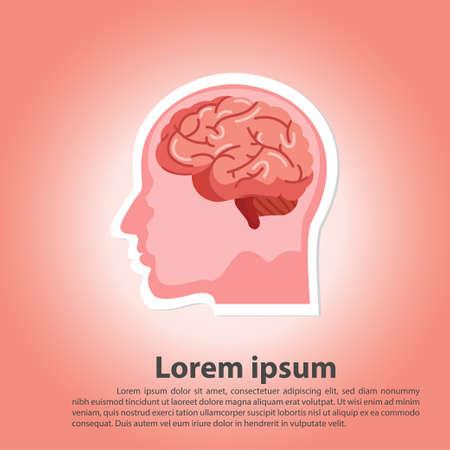 Scientific medical illustration of human brain stroke illustration. Types of human brain stroke illustration. vector, esp