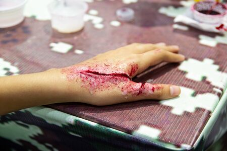 Fake wounds on the arms of children dress the wound special effect