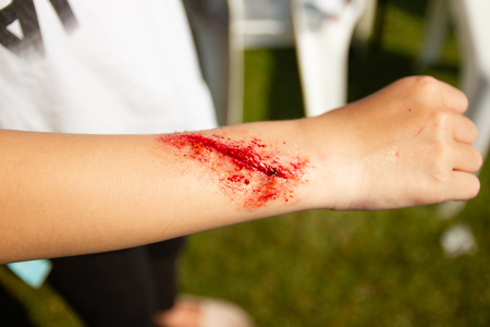 Expert to make fake wounds Fake wounds on the arms of children dress the wound special effect