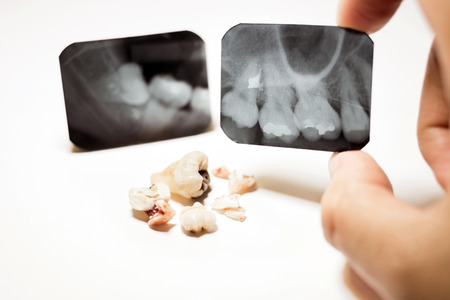 tooth extraction: Film X-Ray scan for impacted tooth and tooth removal