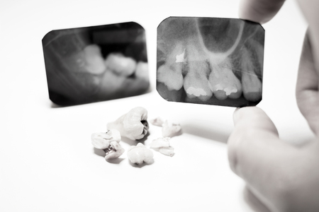 impacted: Film X-Ray scan for impacted tooth and tooth removal ; black  white tone