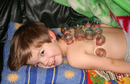 sha: Cupping Therapy Stock Photo