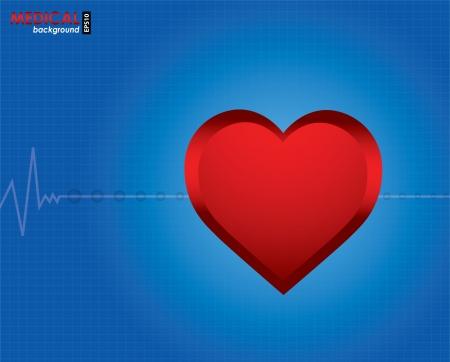 cardiogram: electrocardiogram with special design
