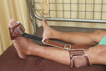 carpol: Trauma of knee and ankle apply foot sling to prevent  foot drop  Stock Photo