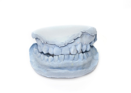 Gypsum model of human teeth on white background photo