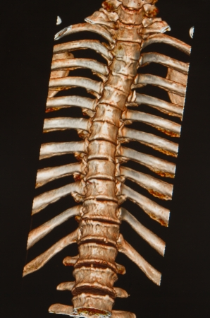 ct scan: human skeleton ,thoracic and lumbar spine under the X-rays C-T scan on black background  Stock Photo