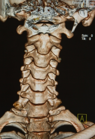 ct scan: human skeleton ,cervicle spine under the X-rays C-T scan on black background