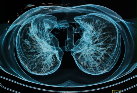 chest X-rays under 3d image ,lungs 3d sagital plane image  Stock Photo - 16296306