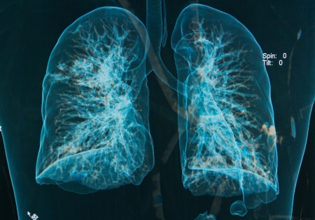 chest X-rays under 3d image ,lungs 3d image   Stock Photo - 16296303