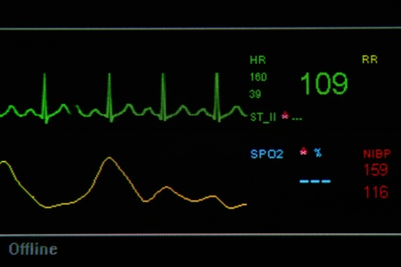 blood pressure unit: EKG monitor in ICU unit show The waves of blood pressure, blood oxygen saturation, ECG,heart rate Stock Photo