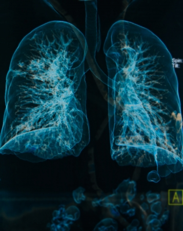 chest X-rays under 3d image ,lungs 3d image Stock Photo - 16296030