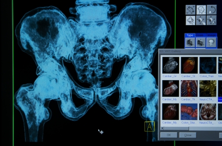 pelvic: pelvis x-rays 3D image from C-Tscan monitor