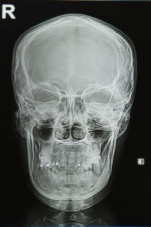 roentgen: skull x-rays image
