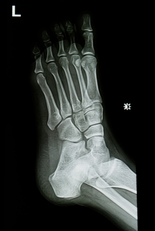 ankle and foot x-rays image photo