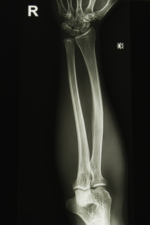 elbow joint x-ray image photo