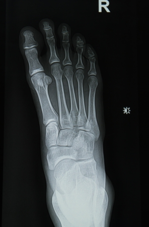 ankle and foot x-rays image Stock Photo - 16296035