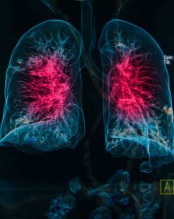 chest X-rays under 3d image ,lungs 3d image show pulmonary disease
