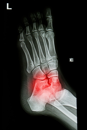 x-rays image of  the painful or injury ankle and foot Banco de Imagens