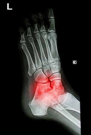 x-stralen beeld van de pijnlijke of letsel enkel en de voet