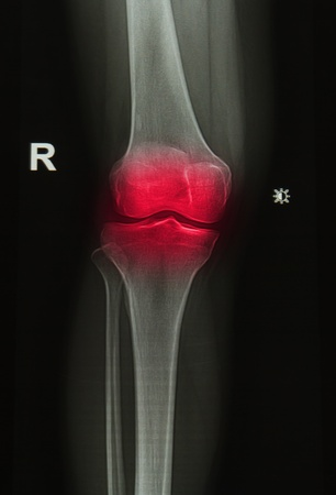 x-rays image of  the painful or injury knee joint photo
