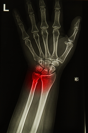 injury or painfull of wrist joint  x-rays image photo
