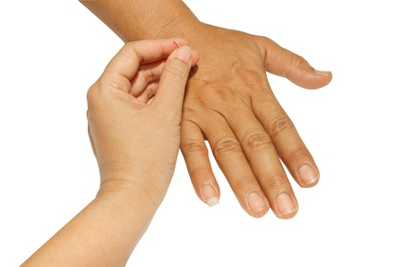 Acupunctured hand on the white background Stock Photo - 16418733