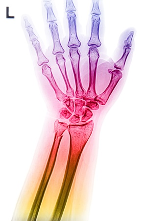 colorful wrist and hand  x-rays  image Stock Photo